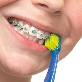pol_pl_curaprox-cs-5460-ortho-szczoteczka-ortodontyczna-z-miekkim-wlosiem-219_3