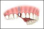 implant2