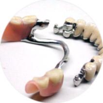 protezy-na-zatrzaskach-zasuwach