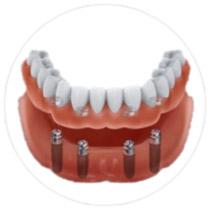 protezy-oparte-na-implantach