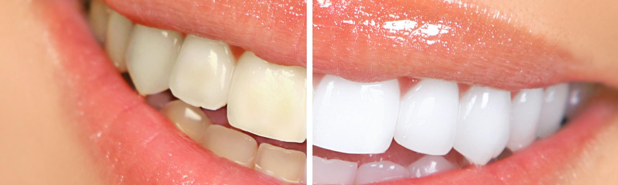 dentysta Gliwice stomatolog